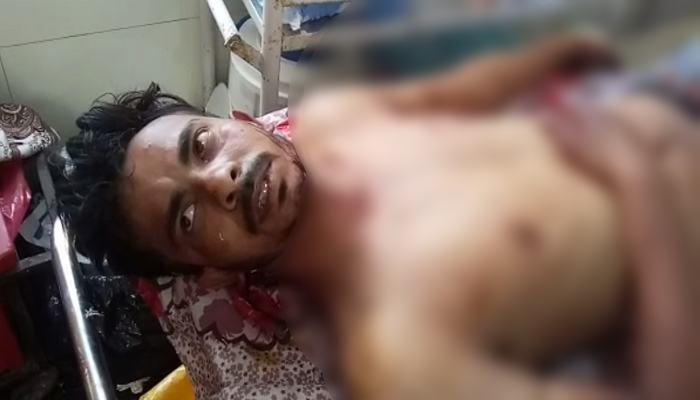 Lover stabbed beloved
