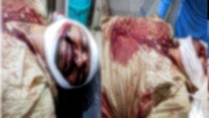 Bathinda: Akali worker On Attack Harsimrat Kaur Badal reached hospital