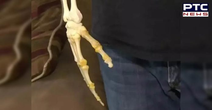 Canada: Man carries around the skeletal remains of his amputated arm [PHOTOS]