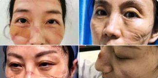 Nurses treating Corona virus patients get scars on face