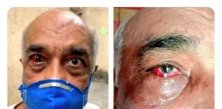 Retired Navy officer Beaten Six Shiv Sena workers arrested