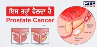 health : What Is Prostate Cancer ? , prostate cancer symptoms and treatment