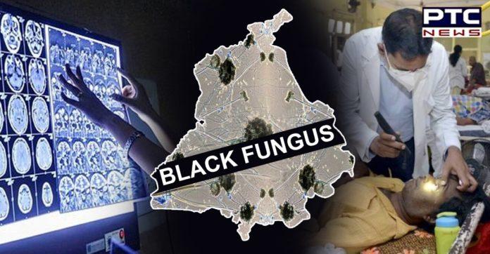 Black Fungus cases in Punjab rise to 188, CM orders ramp-up of alternate drugs